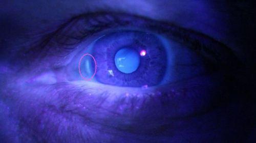 Chemtrails; Fumigación mundial de tóxicos - Página 2 Nano-cc3a1mara-en-el-ojo-izquierdo
